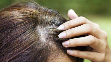 Photo of इन पांच चीजों को डाइट में करें शामिल, सफेद बालों की समस्या होगी ख़त्म